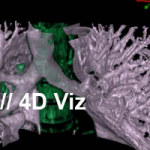 4D Visualization of CT Scan Datasets